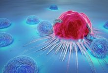 New Drug Discovery Can Stop Spread Of Brain Cancer