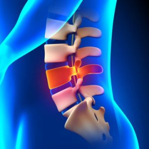 People With Spinal Cord Injury Might Go Through Specific Cognitive Deficits